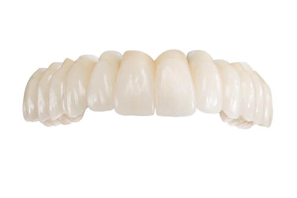 Hochwertiger, metallfreier Zahnersatz im Oberkiefer auf 8 Implantaten aus dem deutschen Meisterlabor