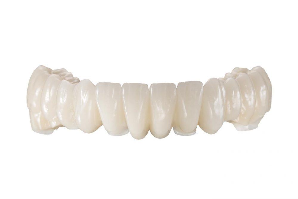 Hochwertiger, metallfreier Zahnersatz im Unterkiefer auf 6 Implantaten aus dem deutschen Meisterlabor