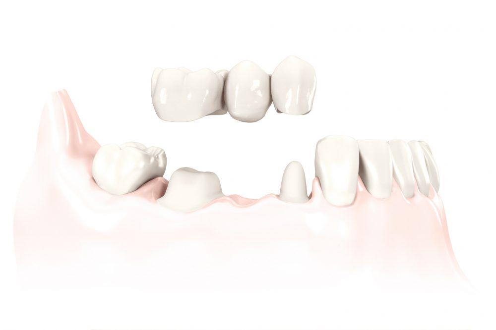 Die Zahnbrücke ist ein festsitzender Zahnersatz aus Zirkonkeramik