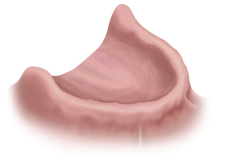Zahnloser Unterkiefer