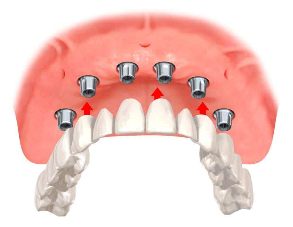 Zahnprothese mit Gaumenplatte im Oberkiefer