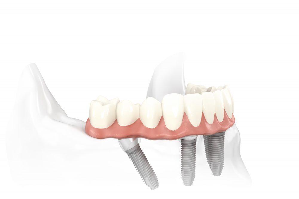 Bedingt herausnehmbarer, verschraubter Zahnersatz auf 4 Implantaten im Unterkiefer.