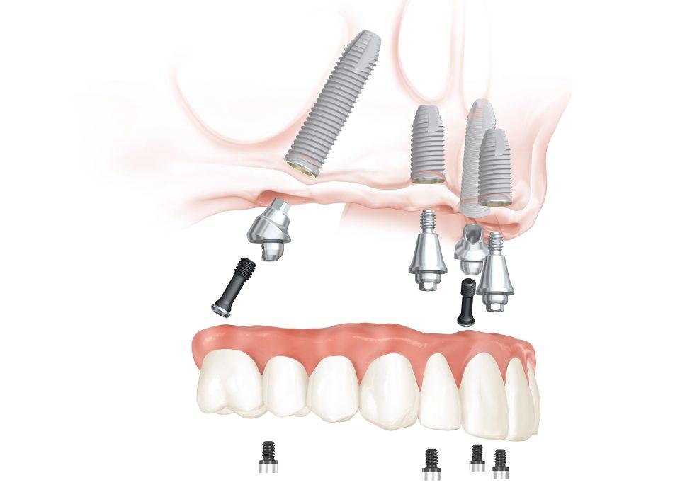 Feste dritte Zähne an einem Tag im Oberkiefer aus dem All-on-4® Kompetenzzentrum