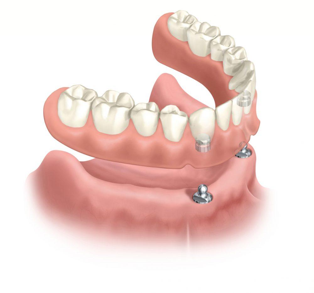 Herausnehmbarer Zahnersatz im Unterkiefer auf Kugelkopfankerimplantaten