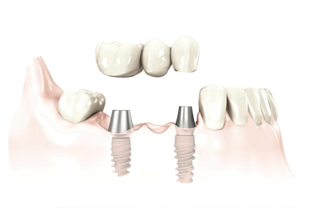 Implantatgetragener Zahnersatz im Unterkiefer.