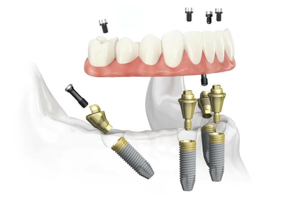 Feste dritte Zähne an einem Tag im Unterkiefer aus dem All-on-4® Kompetenzzentrum