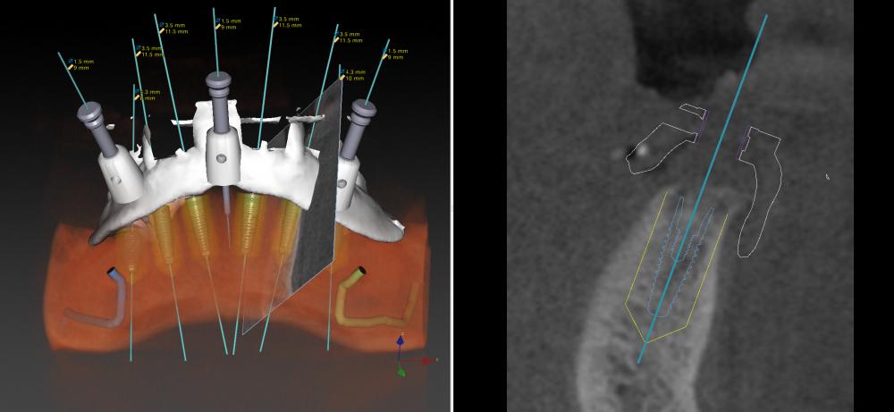 Backward-Planning für festsitzenden Zahnersatz auf 6 Implantaten