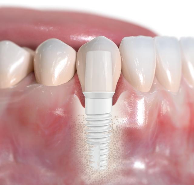 Keramikimplantate: Weiße Zahnimplantate - Welche Vorteile bieten Keramikimplantate?