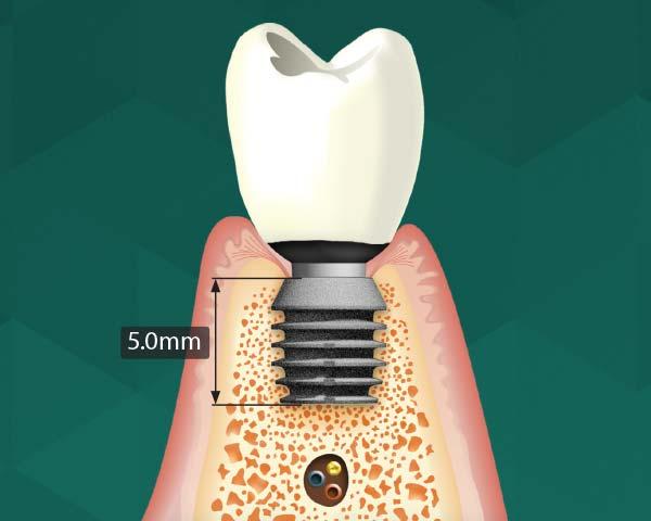 Kurze Implantate: Knochenaufbau vermeiden.