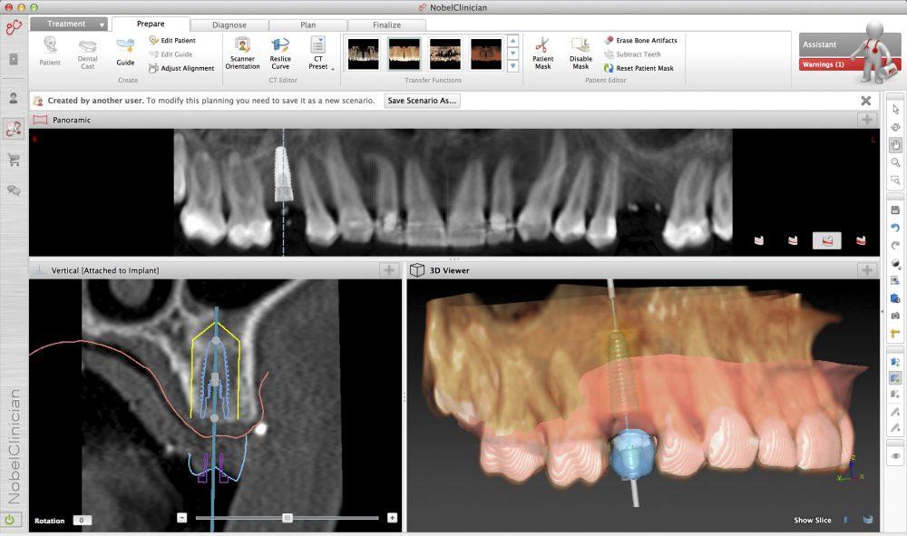 Moderne 3D Implantatplanung