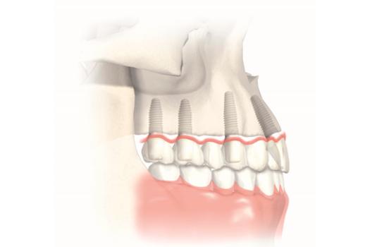 Sinuslift vor der Zahnimplantation