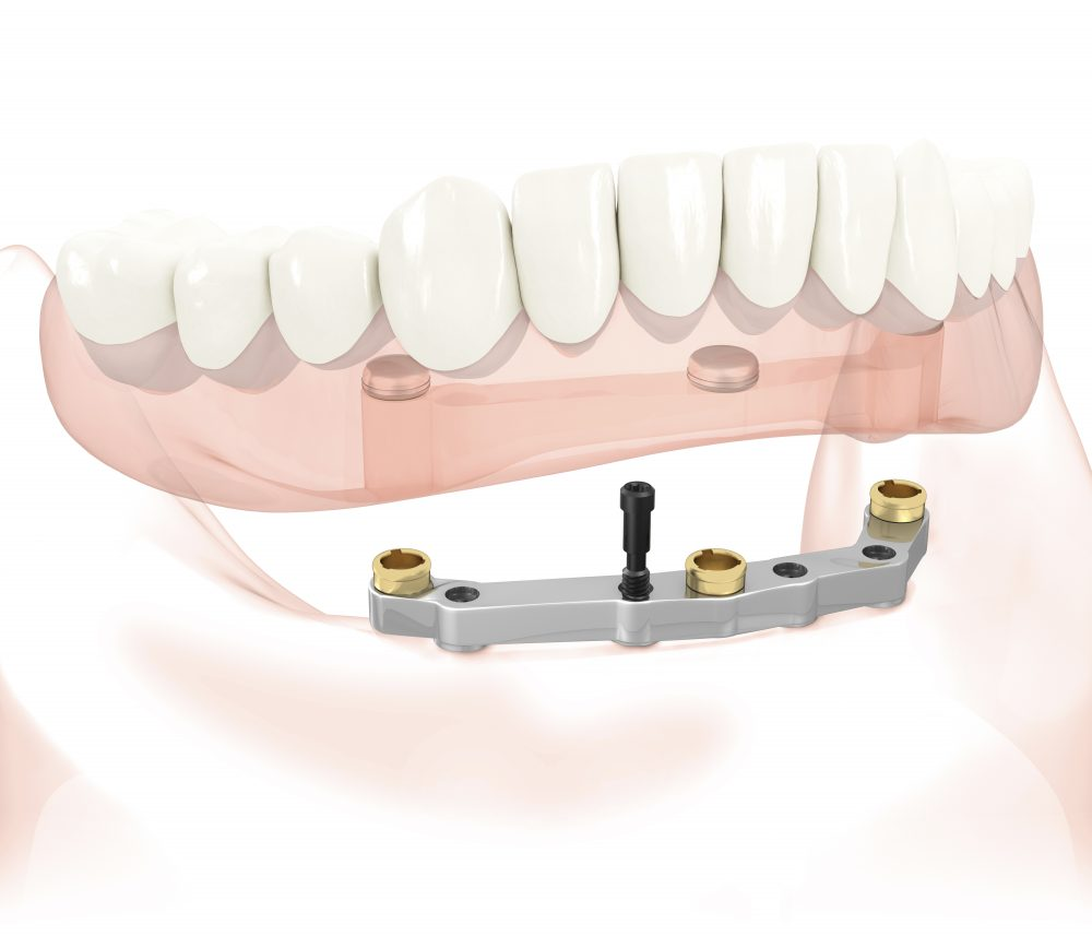 Stegprothese als herausnehmbarer Zahnersatz auf 4 Implantaten im Unterkiefer