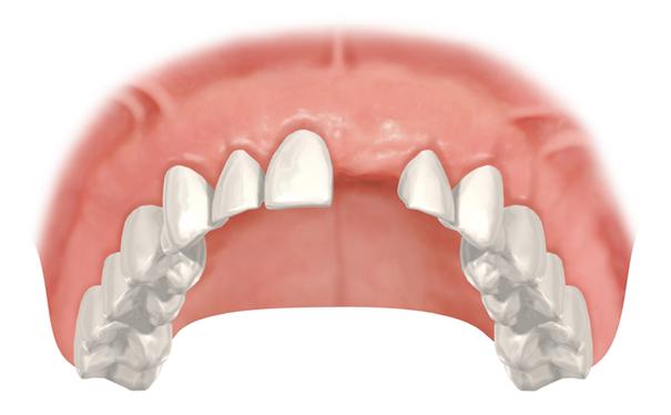 Parodontitis: Die schleichende Gefahr für die Zahngesundheit - Einzel Zahnverlust im Oberkiefer