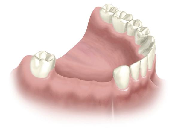 Wie kommt es zum Zahnverlust von mehreren Zähnen?