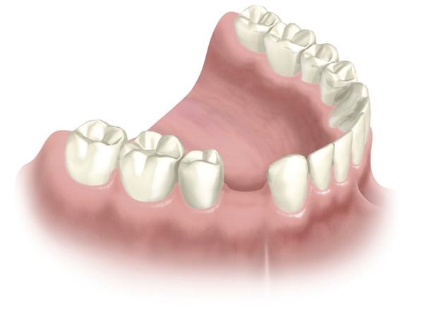 Bildtext: Zahnverlust - warum? Einzel Zahnverlust im Unterkiefer
