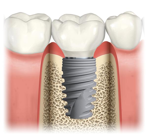 Implantat bei Zahnverlust: Zahnersatz auf Implantat