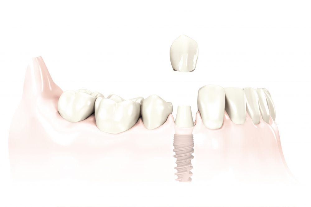 Zahnimplantat mit Vollkeramikkrone