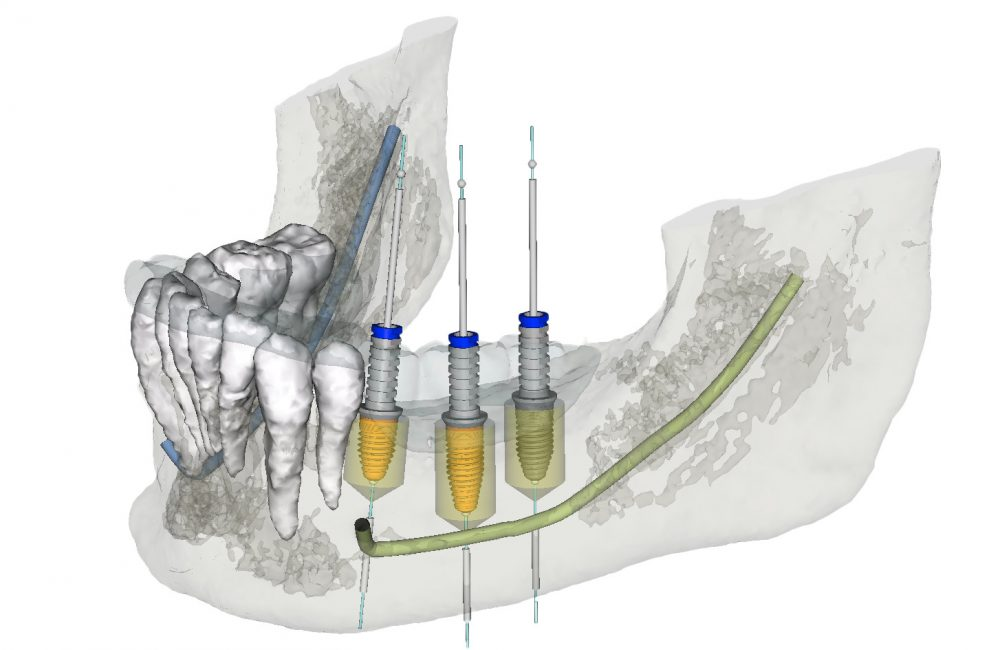 Computergestützter 3D Implantatplanung