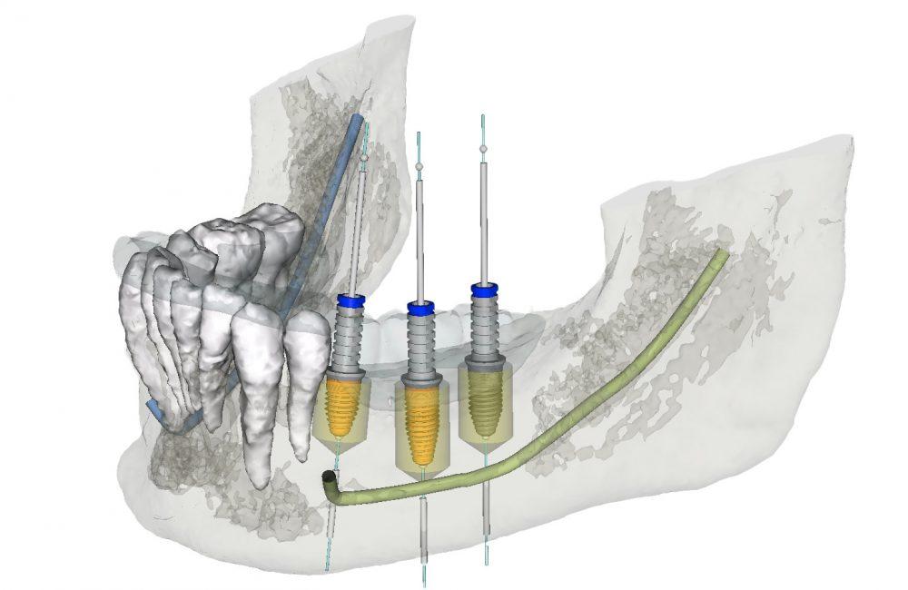 Computergestützter 3D Implantatplanung